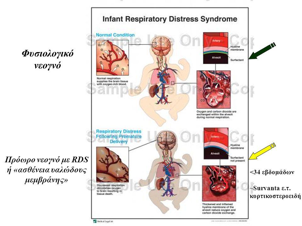 Φυσιολογικό νεογνό Πρόωρο νεογνό με RDS ή «ασθένεια υαλώδους μεμβράνης» <34 εβδομάδων ~Survanta ε.τ. κορτικοστεροειδή