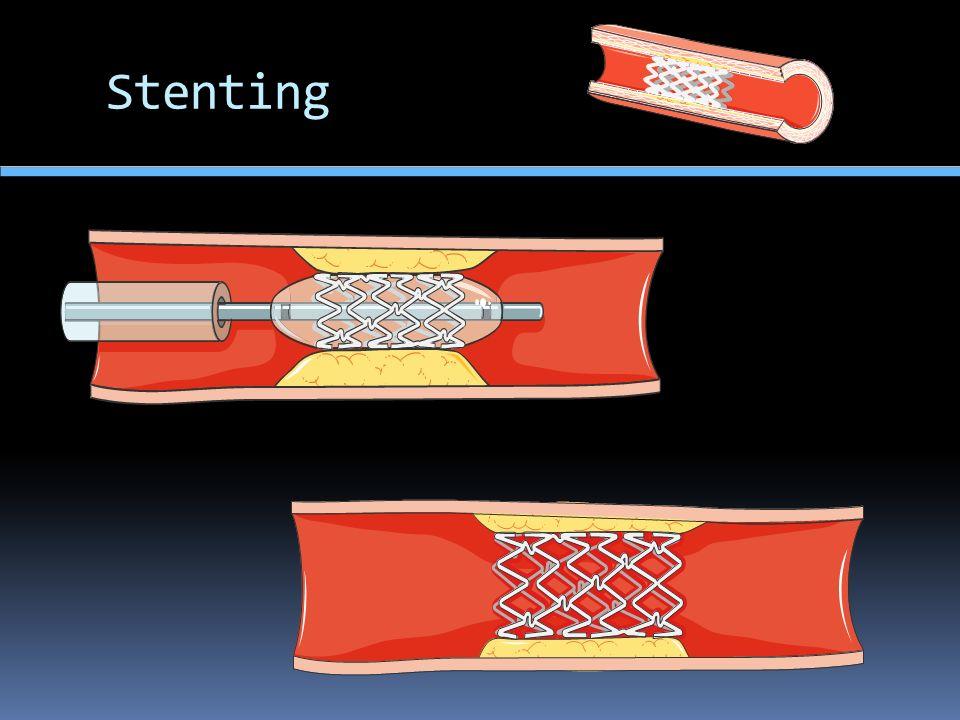 Stenting