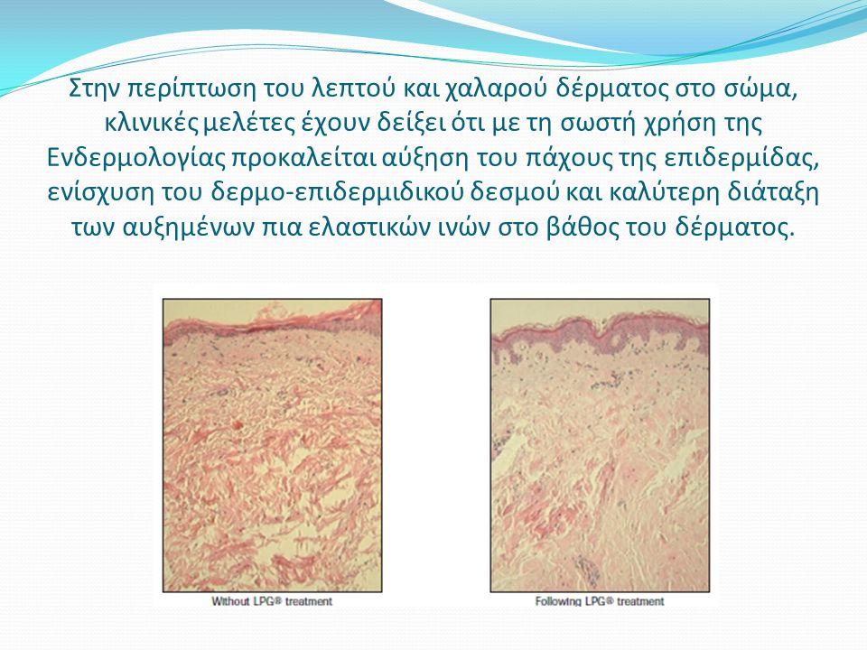 Στην περίπτωση του λεπτού και χαλαρού δέρματος στο σώμα, κλινικές μελέτες έχουν δείξει ότι με τη σωστή χρήση της Ενδερμολογίας προκαλείται αύξηση του πάχους της επιδερμίδας, ενίσχυση του δερμο-επιδερμιδικού δεσμού και καλύτερη διάταξη των αυξημένων πια ελαστικών ινών στο βάθος του δέρματος.