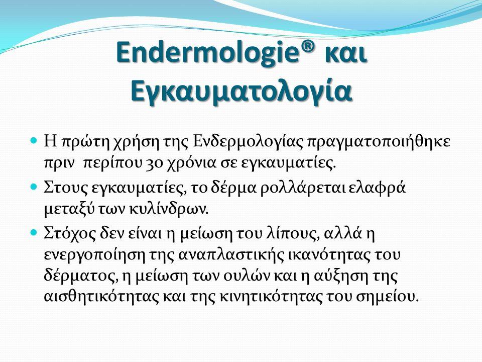 Endermologie® και Εγκαυματολογία Η πρώτη χρήση της Ενδερμολογίας πραγματοποιήθηκε πριν περίπου 30 χρόνια σε εγκαυματίες.