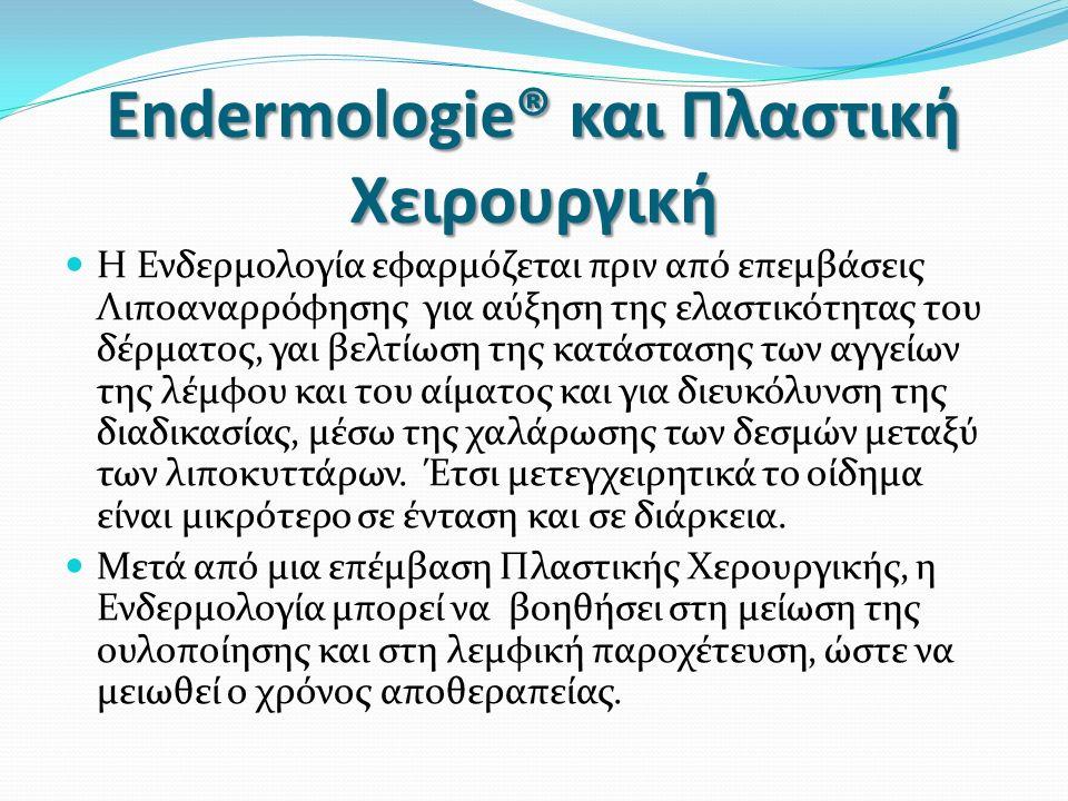 Endermologie® και Πλαστική Χειρουργική H Ενδερμολογία εφαρμόζεται πριν από επεμβάσεις Λιποαναρρόφησης για αύξηση της ελαστικότητας του δέρματος, γαι βελτίωση της κατάστασης των αγγείων της λέμφου και του αίματος και για διευκόλυνση της διαδικασίας, μέσω της χαλάρωσης των δεσμών μεταξύ των λιποκυττάρων.