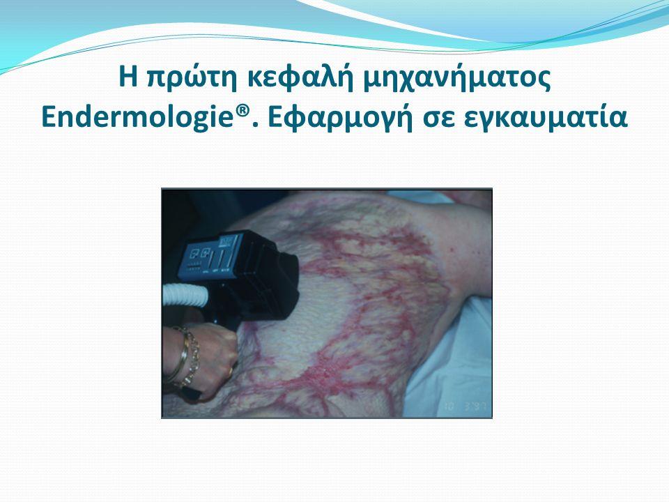 Η πρώτη κεφαλή μηχανήματος Endermologie®. Εφαρμογή σε εγκαυματία