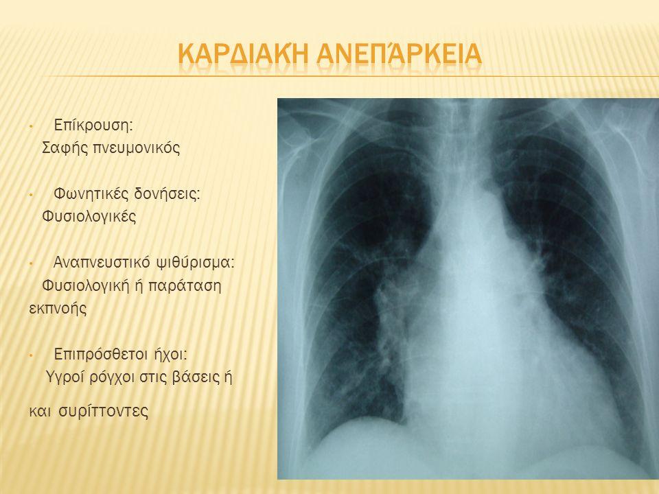 Επίκρουση: Αμβλύς ή υπαμβλύς Φωνητικές δονήσεις: Ελαττωμένες ή απουσιάζουν Αναπνευστικό ψιθύρισμα: Ελαττωμένο ή απουσιάζει Επιπρόσθετοι ήχοι: Κανένας