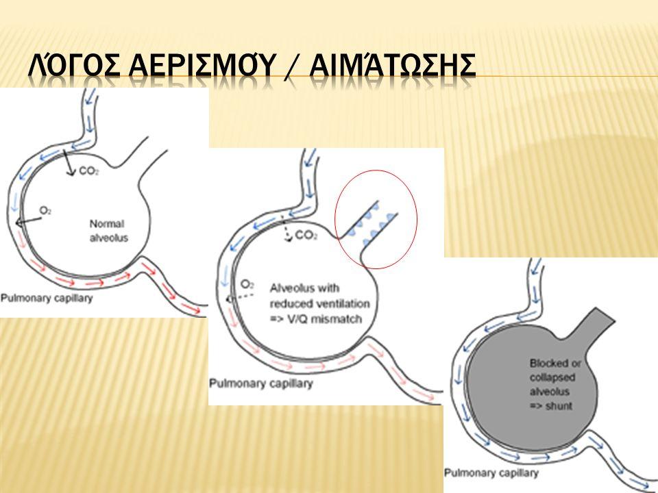  Χρόνια Αποφρακτική Πνευμονοπάθεια  Πνευμονία  Πνευμοθώρακας  Πνευμονική Εμβολή  Χειρουργική Θώρακος  Καρκίνος του Πνεύμονα