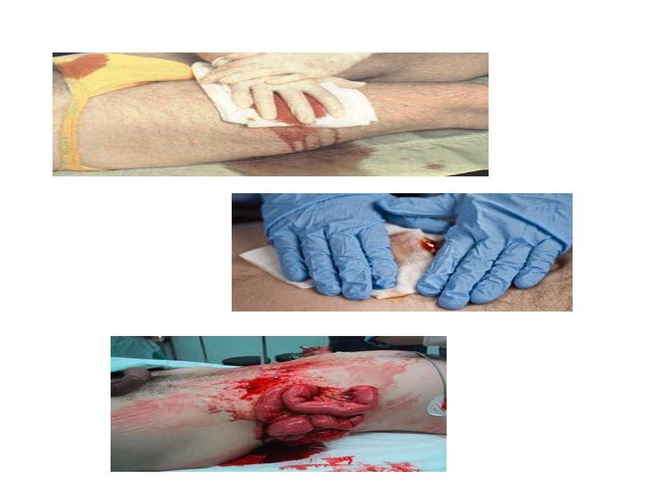 Κατά την εκτίμηση του ασθενούς με αιμορραγία, τα ευρήματα συνήθως εξαρτώνται από την ποσότητα του αίματος που έχει χαθεί και από τον ρυθμό της απώλειας.