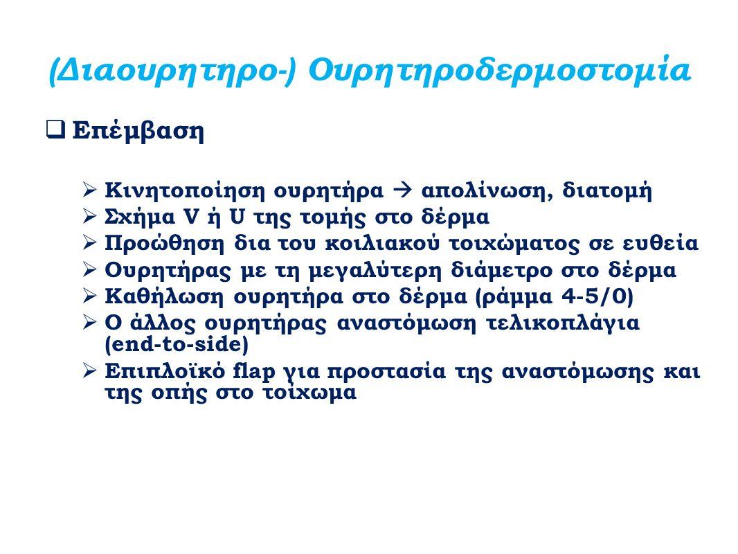(Διαουρητηρο-) Ουρητηροδερμοστομία  Επέμβαση  Κινητοποίηση ουρητήρα  απολίνωση, διατομή  Σχήμα V ή U της τομής στο δέρμα  Προώθηση δια του κοιλια