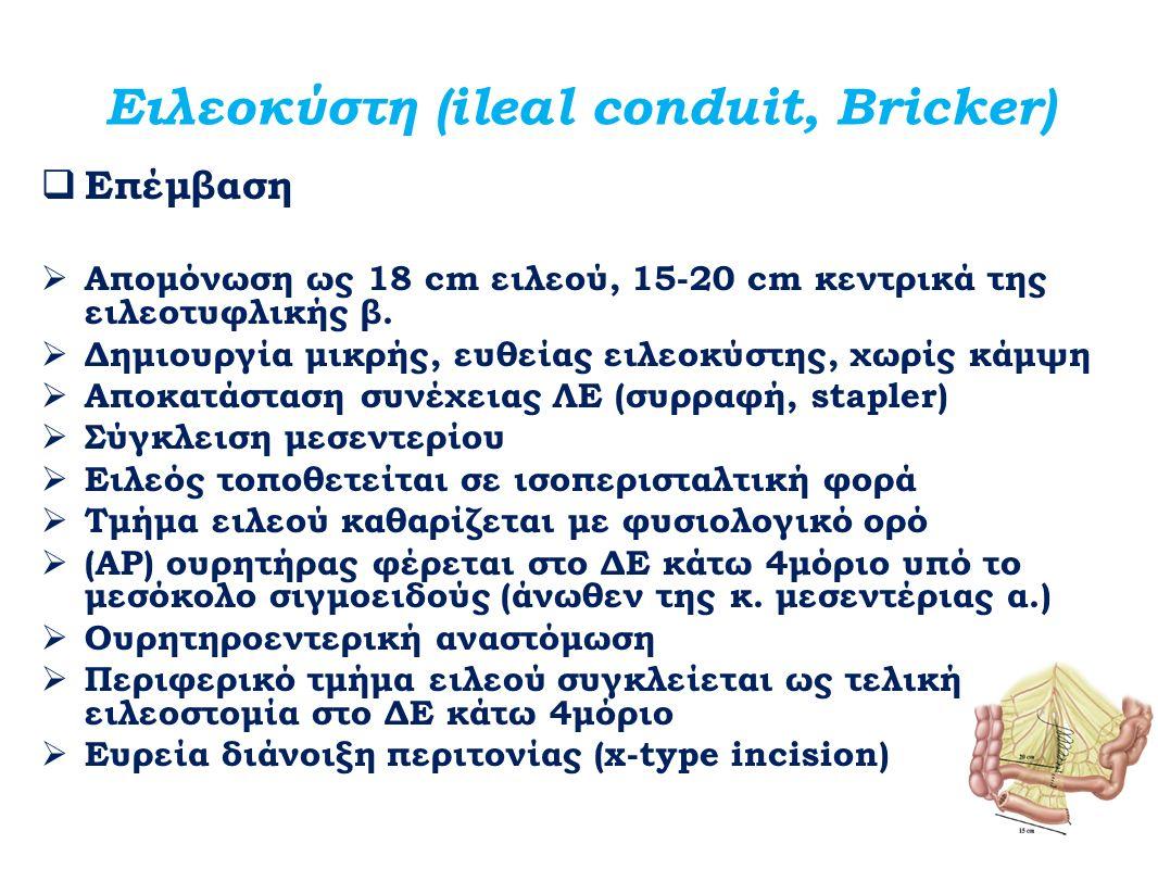 Ειλεοκύστη (ileal conduit, Bricker)  Επέμβαση  Απομόνωση ως 18 cm ειλεού, 15-20 cm κεντρικά της ειλεοτυφλικής β.  Δημιουργία μικρής, ευθείας ειλεοκ