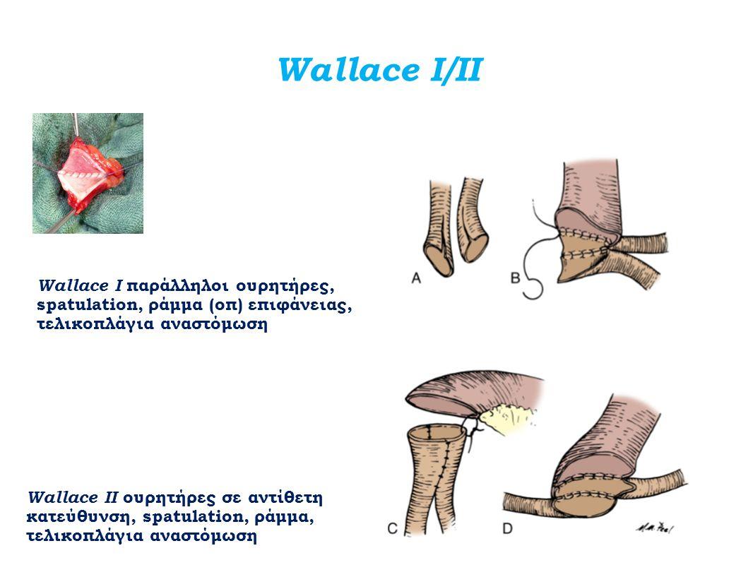 Wallace Ι/ΙΙ Wallace Ι παράλληλοι ουρητήρες, spatulation, ράμμα (οπ) επιφάνειας, τελικοπλάγια αναστόμωση Wallace ΙΙ ουρητήρες σε αντίθετη κατεύθυνση,