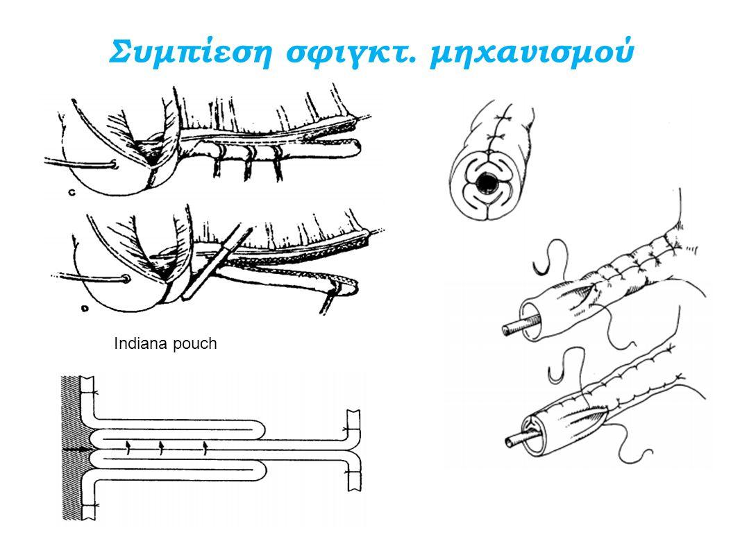 Συμπίεση σφιγκτ. μηχανισμού Indiana pouch