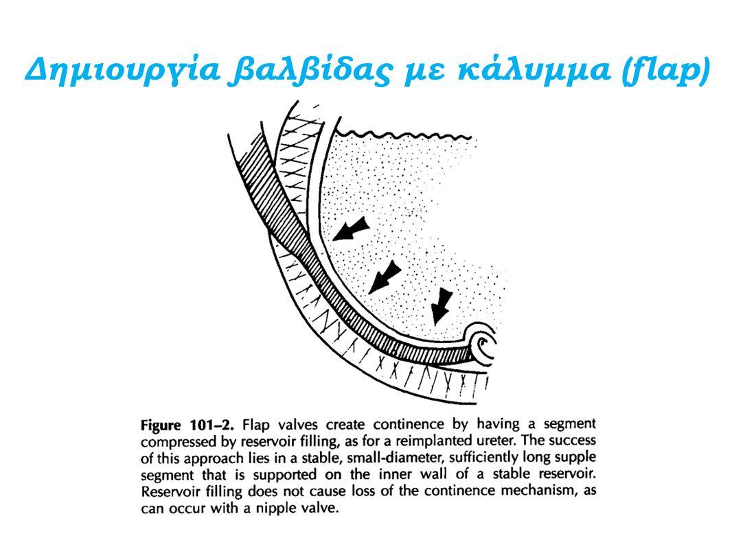 Δημιουργία βαλβίδας με κάλυμμα (flap)