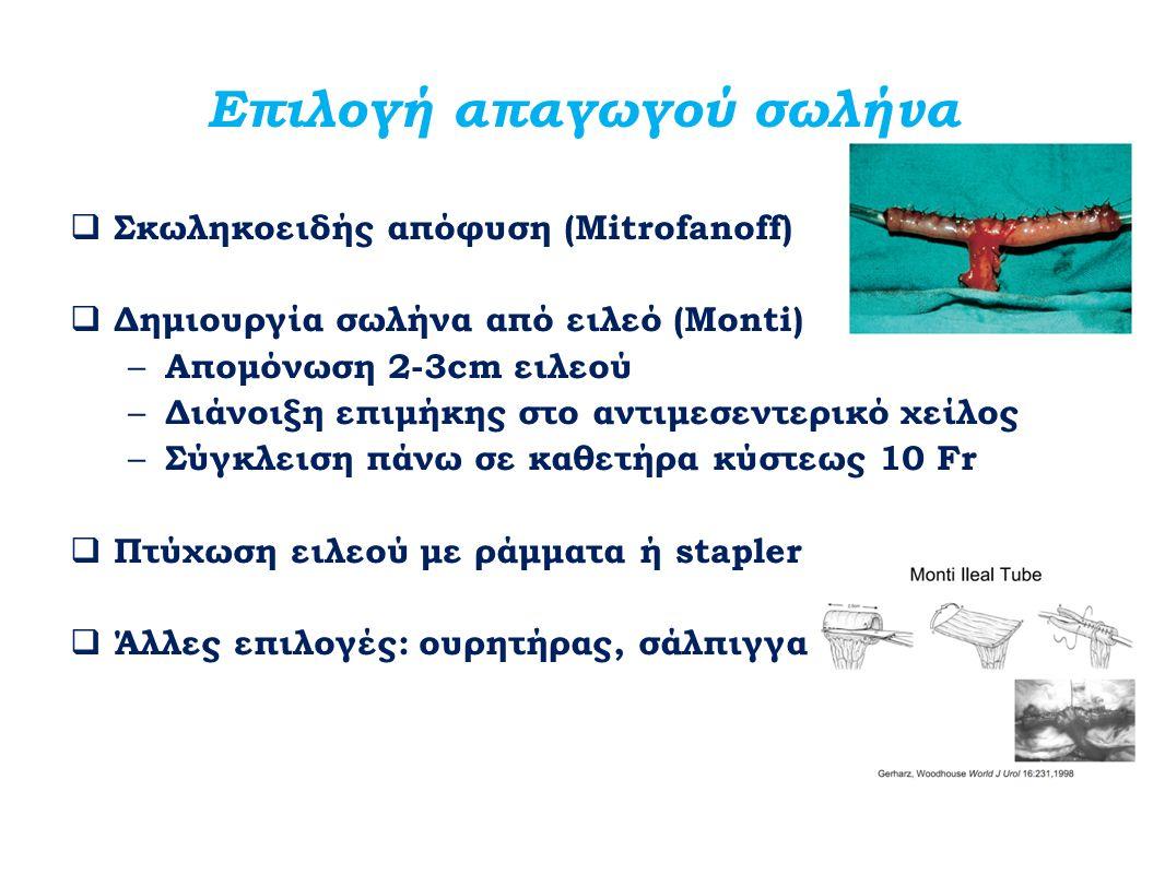 Επιλογή απαγωγού σωλήνα  Σκωληκοειδής απόφυση (Mitrofanoff)  Δημιουργία σωλήνα από ειλεό (Monti) – Απομόνωση 2-3cm ειλεού – Διάνοιξη επιμήκης στο αν