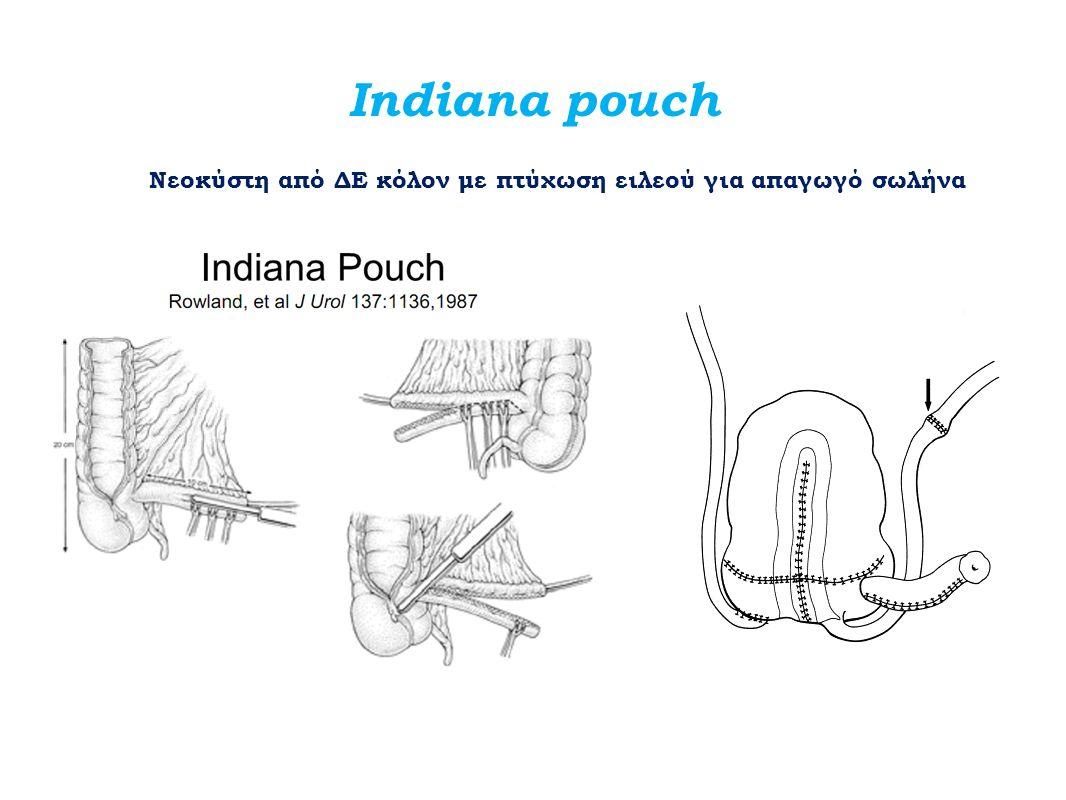 Indiana pouch Νεοκύστη από ΔΕ κόλον με πτύχωση ειλεού για απαγωγό σωλήνα