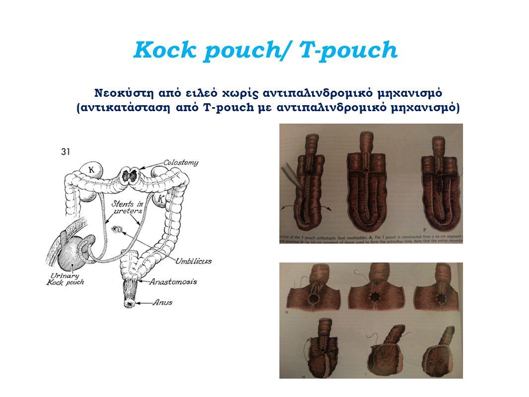 Kock pouch/ T-pouch Νεοκύστη από ειλεό χωρίς αντιπαλινδρομικό μηχανισμό (αντικατάσταση από Τ-pouch με αντιπαλινδρομικό μηχανισμό)