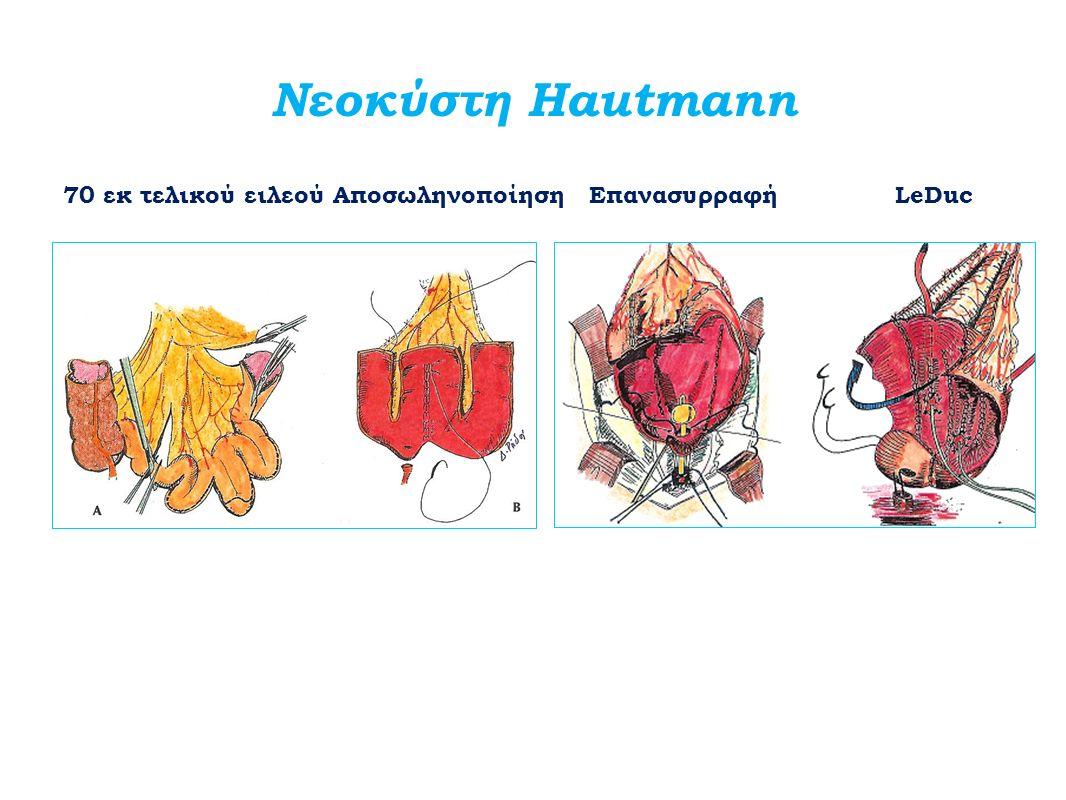 Νεοκύστη Hautmann 70 εκ τελικού ειλεού Αποσωληνοποίηση Επανασυρραφή LeDuc