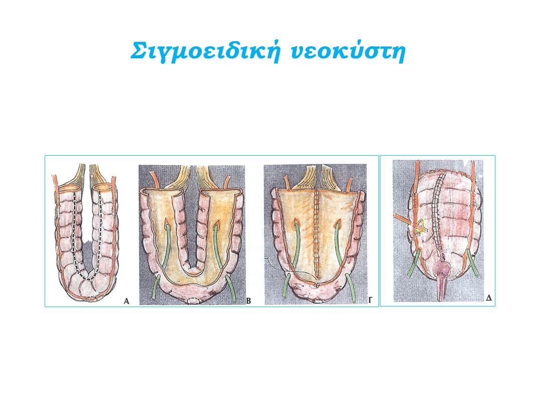 Σιγμοειδική νεοκύστη