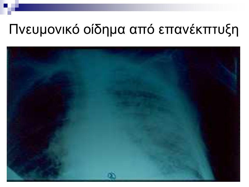 Πνευμονικό οίδημα από επανέκπτυξη
