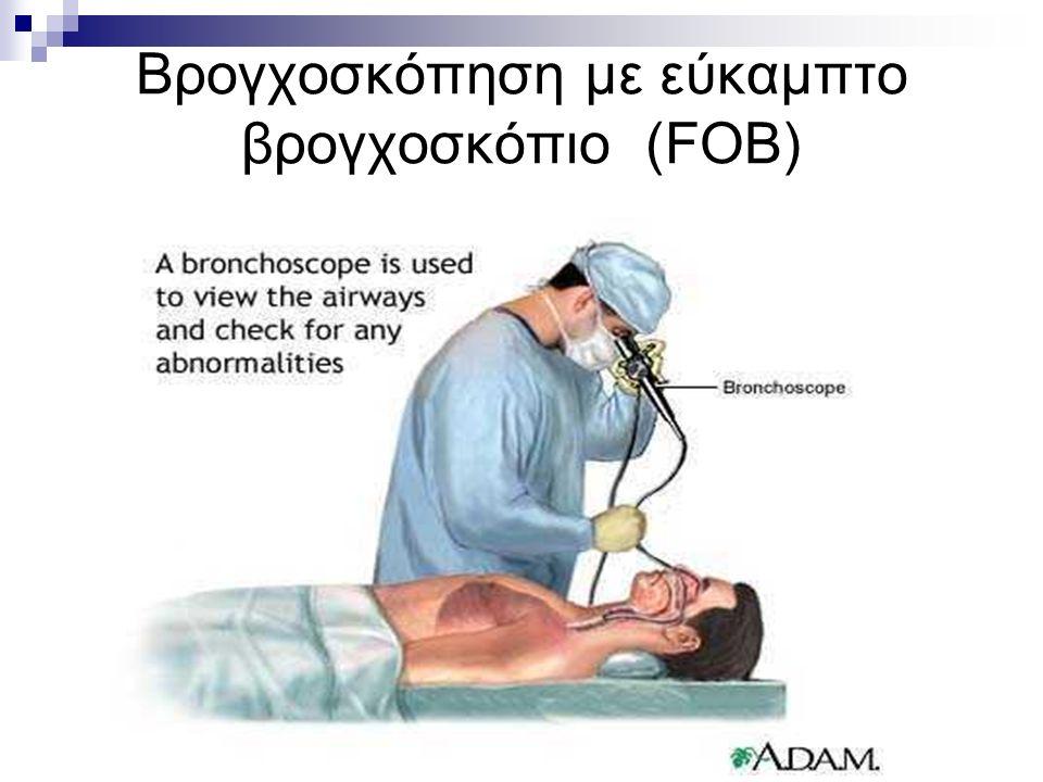 Βρογχοσκόπηση με εύκαμπτο βρογχοσκόπιο (FOB)
