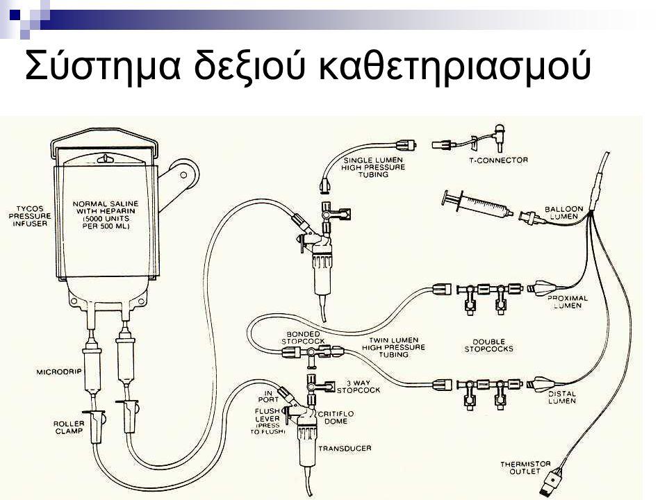 Σύστημα δεξιού καθετηριασμού