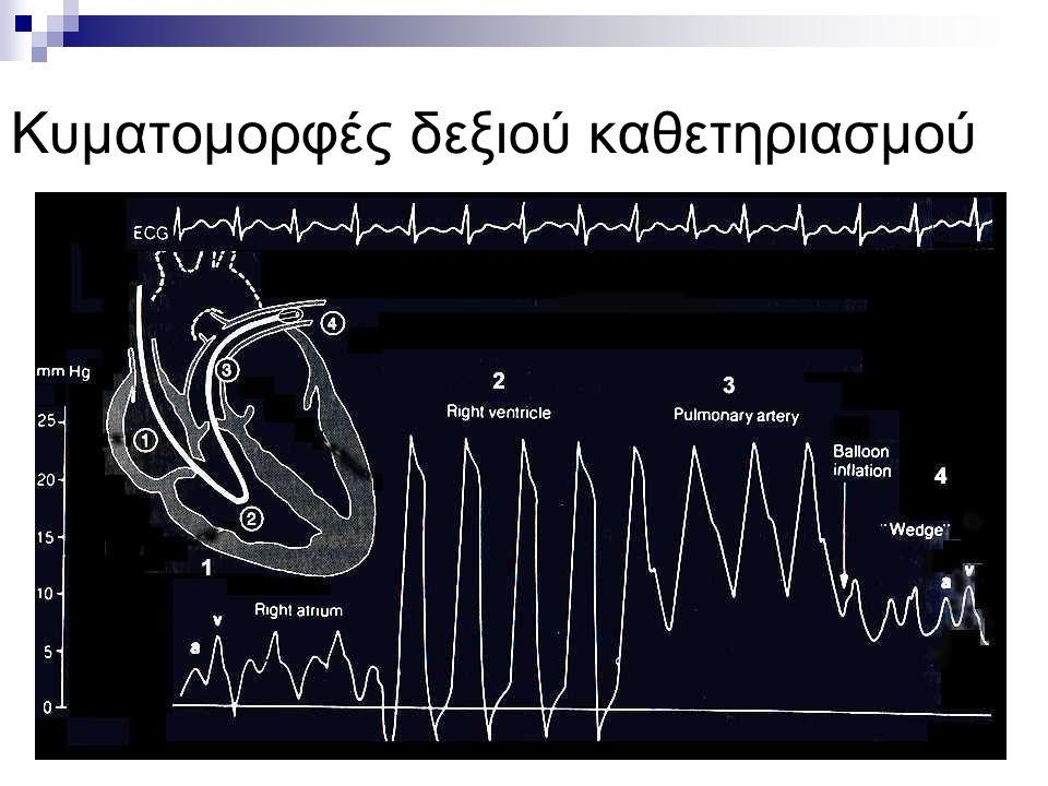 Κυματομορφές δεξιού καθετηριασμού