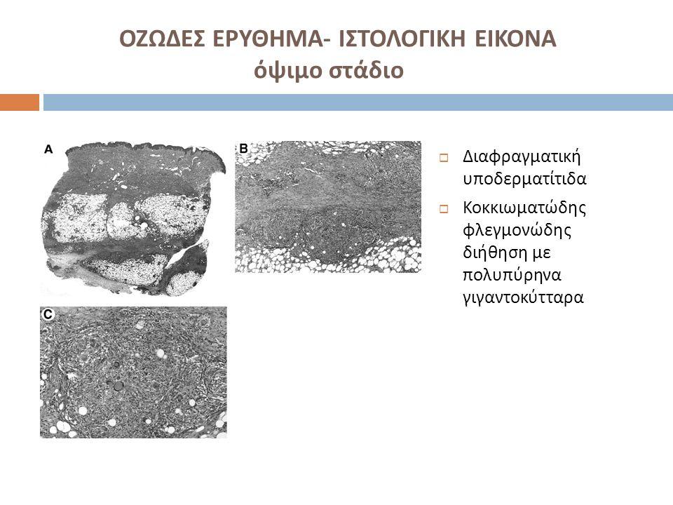 ΟΖΩΔΕΣ ΕΡΥΘΗΜΑ - ΘΕΡΑΠΕΙΑ  Θεραπεία υποκείμενης λοιμώδους νόσου  Κατάκλιση  ΜΣΑΦ  Ιωδιούχο κάλιο  Πρεδνιζολόνη  Κολχικίνη ( σε νόσο Behcet)  Δαψόνη  Υδροξυχλωροκίνη  Infliximab ( σε φλεγμονώδη νόσο εντέρου )  Κυκλοσπορίνη ( σε νόσο Behcet)