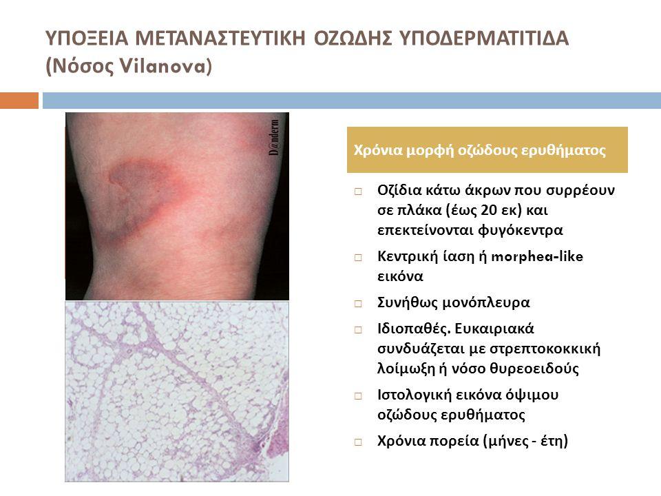ΥΠΟΞΕΙΑ ΜΕΤΑΝΑΣΤΕΥΤΙΚΗ ΟΖΩΔΗΣ ΥΠΟΔΕΡΜΑΤΙΤΙΔΑ ( Νόσος Vilanova)  Οζίδια κάτω άκρων που συρρέουν σε πλάκα ( έως 20 εκ ) και επεκτείνονται φυγόκεντρα 