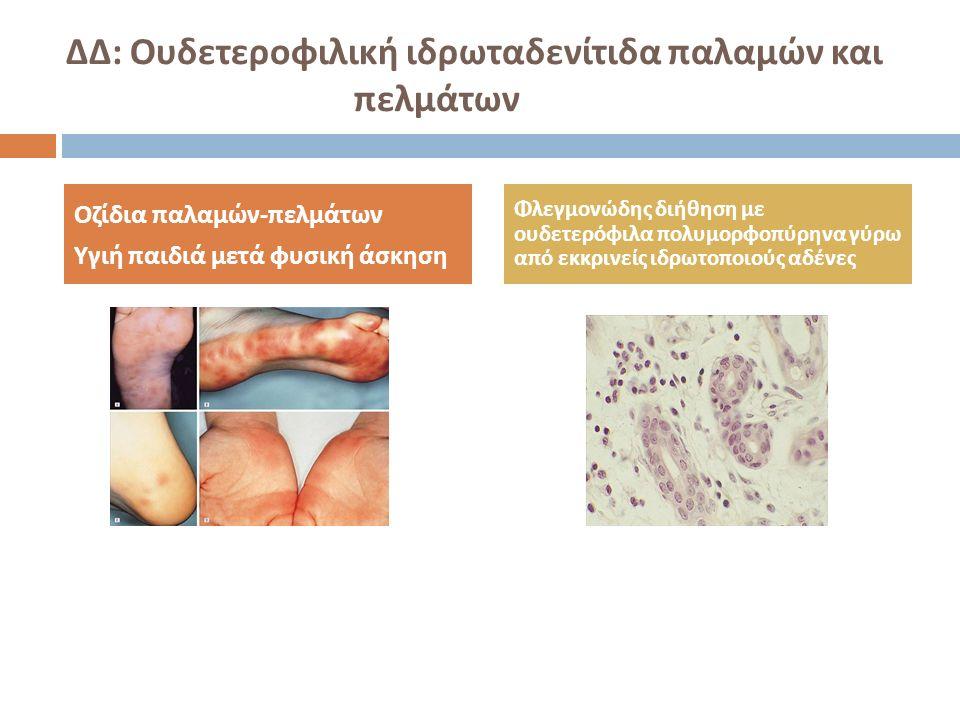 ΔΔ : Ουδετεροφιλική ιδρωταδενίτιδα παλαμών και πελμάτων Οζίδια παλαμών - πελμάτων Υγιή παιδιά μετά φυσική άσκηση Φλεγμονώδης διήθηση με ουδετερόφιλα π