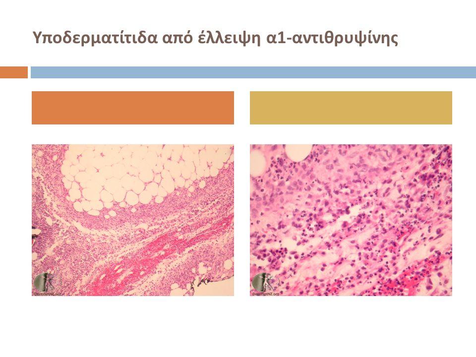 Υποδερματίτιδα από έλλειψη α 1- αντιθρυψίνης