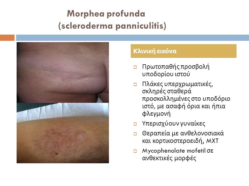 Morphea profunda (scleroderma panniculitis)  Πρωτοπαθής προσβολή υποδορίου ιστού  Πλάκες υπερχρωματικές, σκληρές σταθερά προσκολλημένες στο υποδόριο