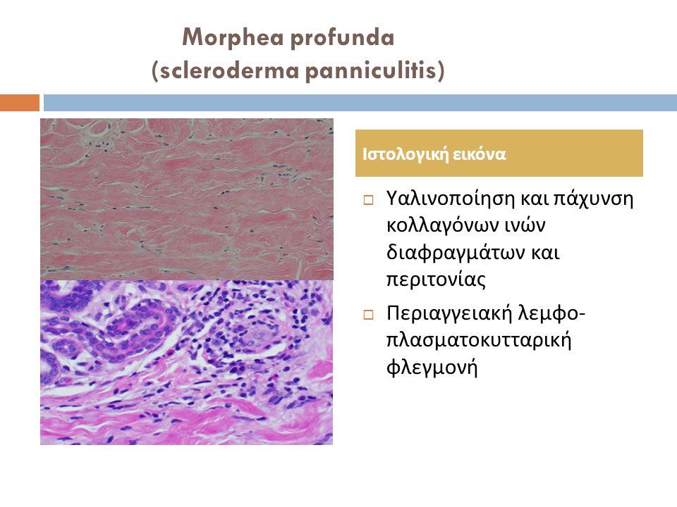 Morphea profunda (scleroderma panniculitis)  Υαλινοποίηση και πάχυνση κολλαγόνων ινών διαφραγμάτων και περιτονίας  Περιαγγειακή λεμφο - πλασματοκυττ