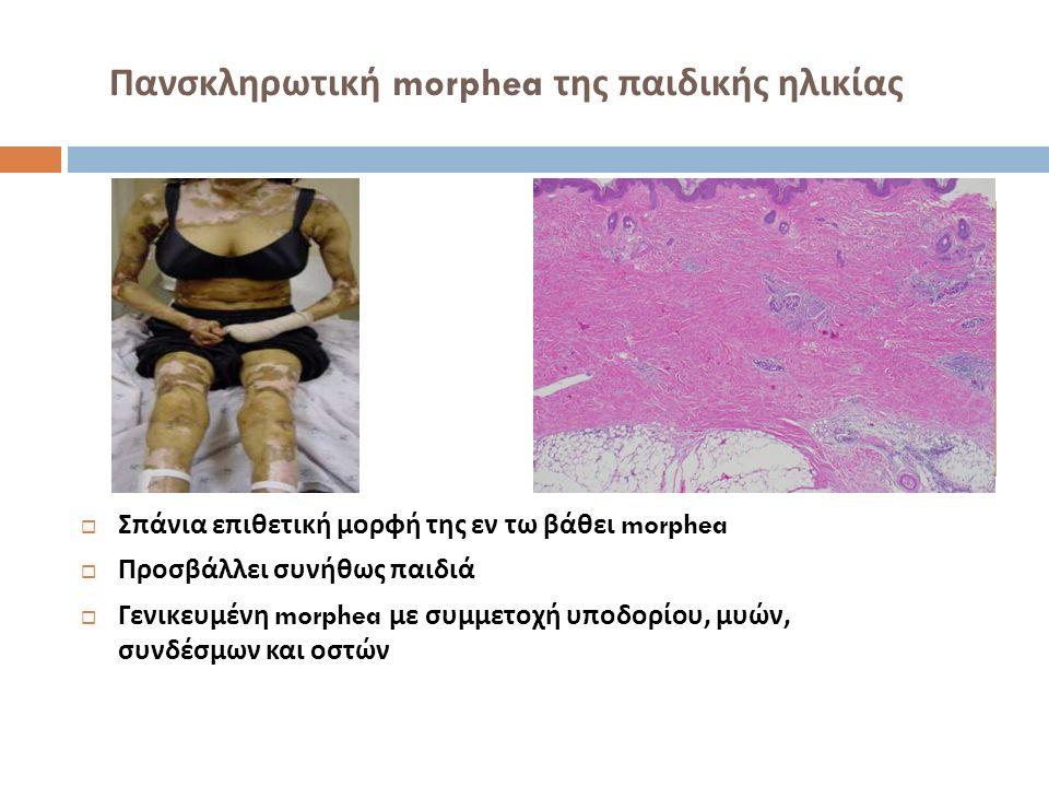 Πανσκληρωτική morphea της παιδικής ηλικίας  Σπάνια επιθετική μορφή της εν τω βάθει morphea  Προσβάλλει συνήθως παιδιά  Γενικευμένη morphea με συμμε