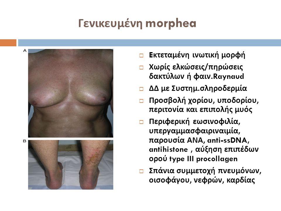 Κατά ταινίας εντοπισμένη σκληροδερμία (linear morphea)  40-70% των παιδιών με morphea  Μονόπλευρη γραμμοειδής κατανομή  Στις γραμμές Blaschko  Γενετικός μωσαϊκισμός  Άκρα, πρόσωπο τριχωτό  Ατροφία μυών, οστού  « Ως κτύπημα σπάθης » (en coup de sabre)