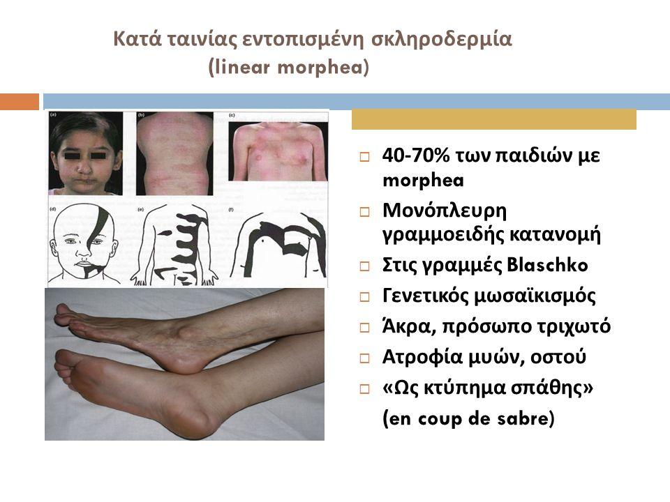 Κατά ταινίας εντοπισμένη σκληροδερμία (linear morphea)  40-70% των παιδιών με morphea  Μονόπλευρη γραμμοειδής κατανομή  Στις γραμμές Blaschko  Γεν