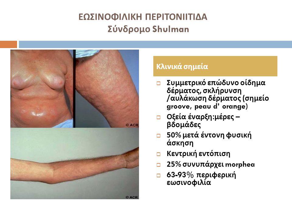 ΕΩΣΙΝΟΦΙΛΙΚΗ ΠΕΡΙΤΟΝΙΙΤΙΔΑ Σύνδρομο Shulman  Συμμετρικό επώδυνο οίδημα δέρματος, σκλήρυνση / αυλάκωση δέρματος ( σημείο groove, peau d' orange)  Οξε