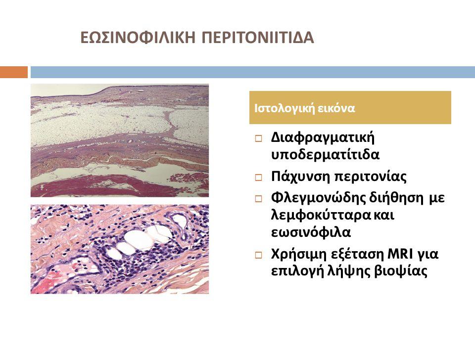 ΕΩΣΙΝΟΦΙΛΙΚΗ ΠΕΡΙΤΟΝΙΙΤΙΔΑ Εξωδερματικές εκδηλώσεις  Συσπάσεις αρθρώσεων  Δυσμορφία χειρών, σημείο προσευχής (56%)  Φλεγμονώδης αρθρίτιδα (40%)  Σύνδρομο καρπιαίου σωλήνα (16- 23%)  Αιματολογικές διαταραχές ( απλαστική, αιμολυτική αναιμία, θρομβοπενία, λέμφωμα, μυελοδυσπλαστικό σύνδρομο, λευχαιμία, πολλαπλούν μυέλωμα )