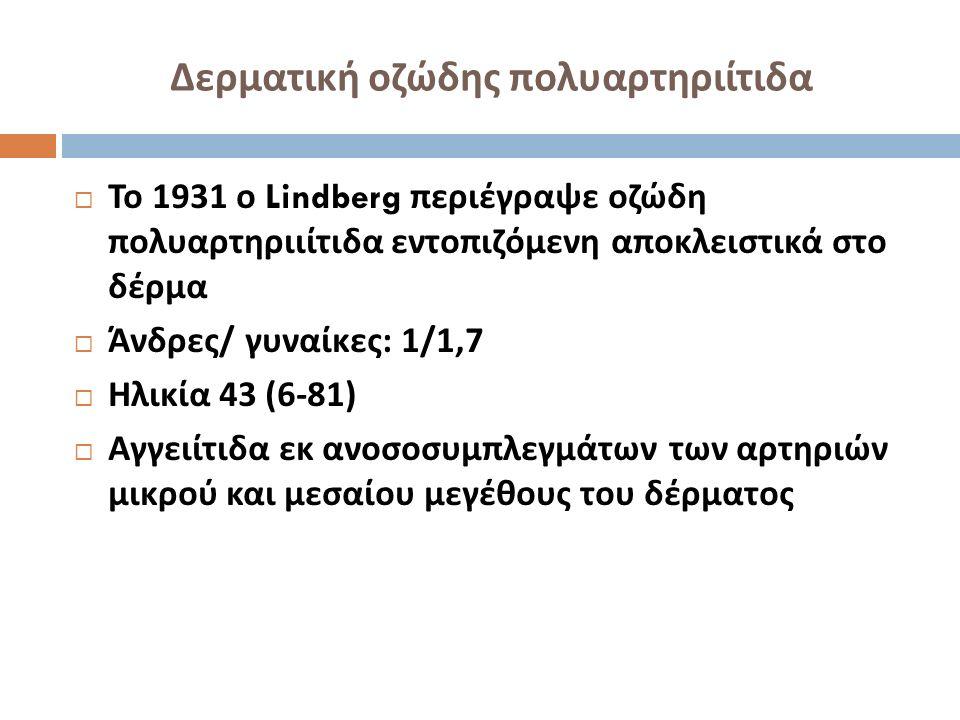 Δερματική οζώδης πολυαρτηριίτιδα  Το 1931 ο Lindberg περιέγραψε οζώδη πολυαρτηριιίτιδα εντοπιζόμενη αποκλειστικά στο δέρμα  Άνδρες / γυναίκες : 1/1,