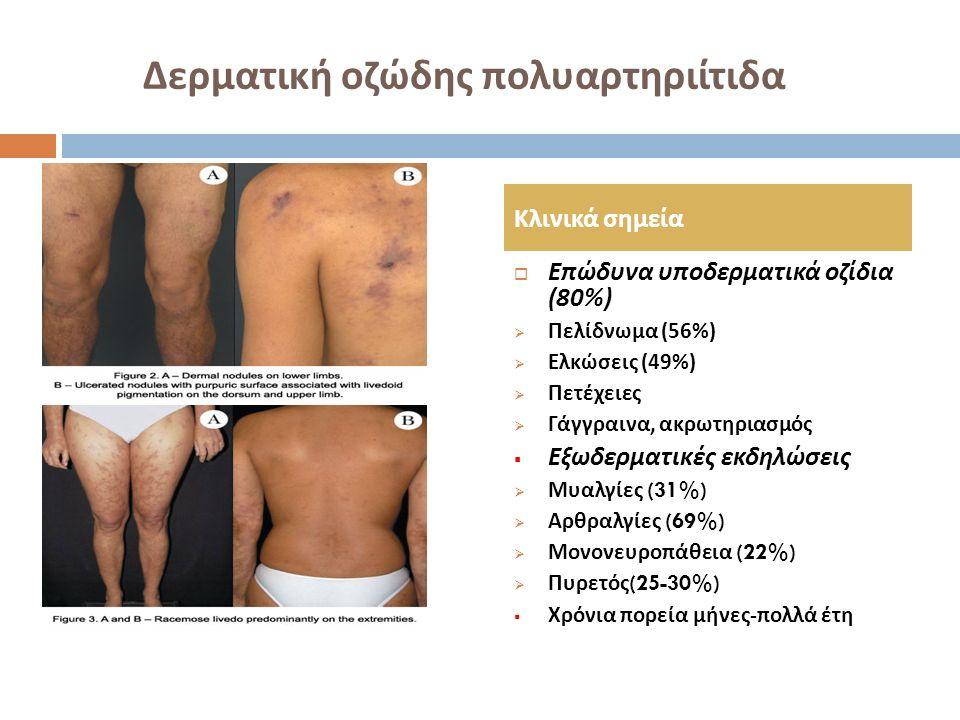 Δερματική οζώδης πολυαρτηριίτιδα  Επώδυνα υποδερματικά οζίδια (80%)  Πελίδνωμα (56%)  Ελκώσεις (49%)  Πετέχειες  Γάγγραινα, ακρωτηριασμός  Εξωδε
