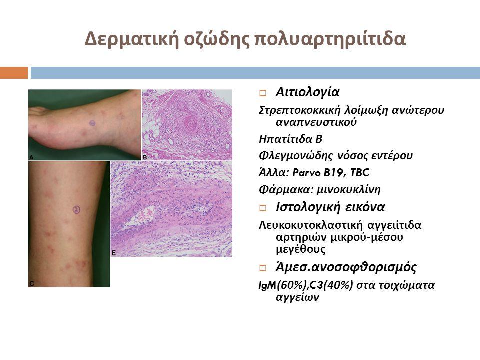 Δερματική οζώδης πολυαρτηριίτιδα  Διάγνωση Αποκλεισμός συστηματικής οζώδους πολυαρτηριίτιδας Παρακολούθηση ανά 6 μηνο Δεν υπάρχουν ενδείξεις μετάπτωσης σε συστηματική  Πορεία Καλή πρόγνωση, χρόνια πορεία με εξάρσεις και υφέσεις  Θεραπεία Ηπιες μορφές : ΜΣΑΦ, κολχικίνη Με κακή ανταπόκριση : πρεδνιζολόνη 0,5-1mg/kg Κολχικίνη, υδροξυχλωροκίνη, δαψόνη, ΜΧΤ, αζαθειοπρίνη κυκλοφωσφαμίδη, σουλφα - πυριδίνη, πεντοξυφυλλίνη, ανοσοσφαιρίν