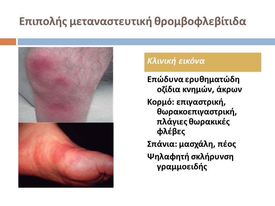 Επιπολής μεταναστευτική θρομβοφλεβίτιδα Προσβολή μεγάλης φλέβας στο επιπολής υποδόριο ιστό Φλεγμονώδης διήθηση όλου του τοιχώματος με ουδετερόφιλα, εωσινόφιλα και ιστιοκύτταρα και απόφραξη αυλού