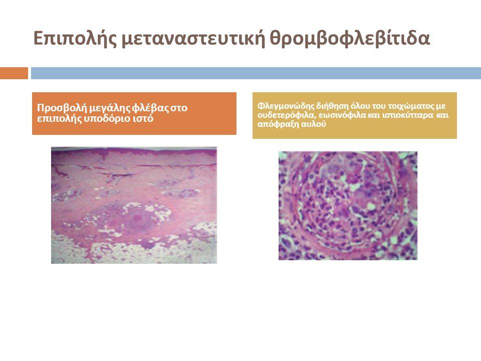 Επιπολής μεταναστευτική θρομβοφλεβίτιδα Προσβολή μεγάλης φλέβας στο επιπολής υποδόριο ιστό Φλεγμονώδης διήθηση όλου του τοιχώματος με ουδετερόφιλα, εω