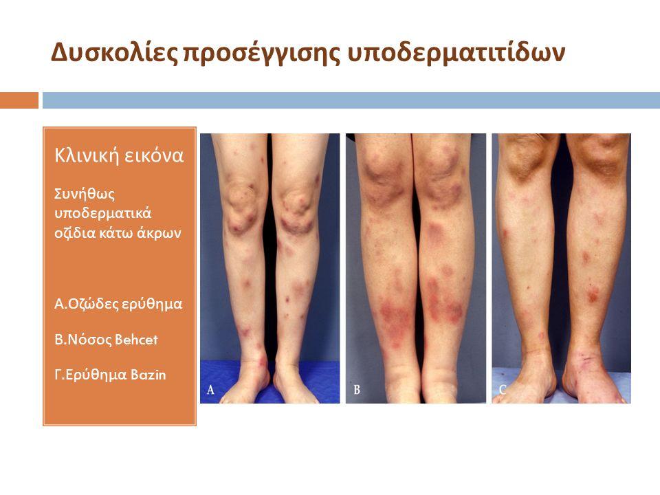 Δυσκολίες προσέγγισης υποδερματιτίδων Κλινική εικόνα Συνήθως υποδερματικά οζίδια κάτω άκρων Α. Οζώδες ερύθημα Β. Νόσος Behcet Γ. Ερύθημα Bazin