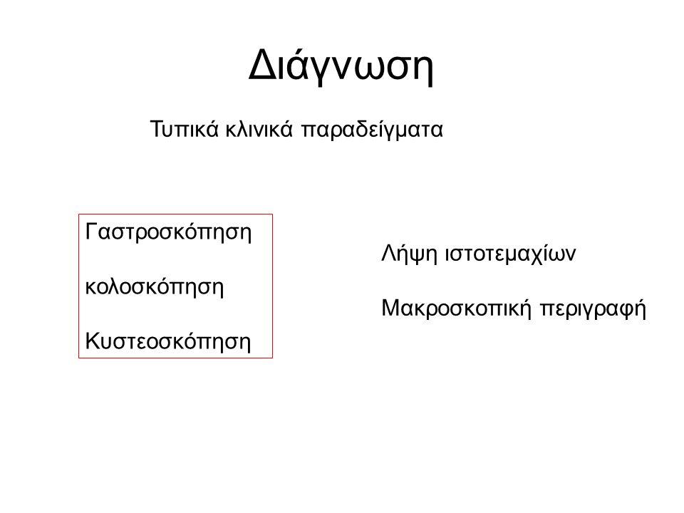 Διάγνωση Τυπικά κλινικά παραδείγματα Γαστροσκόπηση κολοσκόπηση Κυστεοσκόπηση Λήψη ιστοτεμαχίων Μακροσκοπική περιγραφή