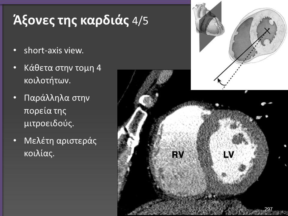 Άξονες της καρδιάς 4/5 short-axis view. Κάθετα στην τομη 4 κοιλοτήτων.