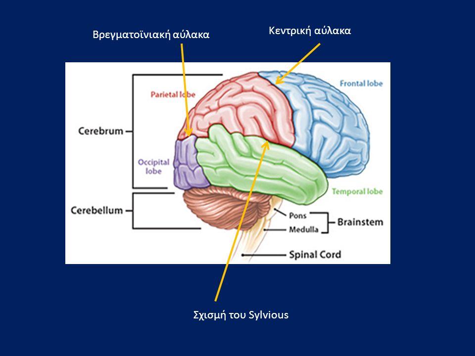 Οπτικό χίασμα Οπτική ακτινοβολία Εγκεφαλικό σκέλος Ερυθρός πυρήνας Διδύμια Υδραγωγός του Sylvious