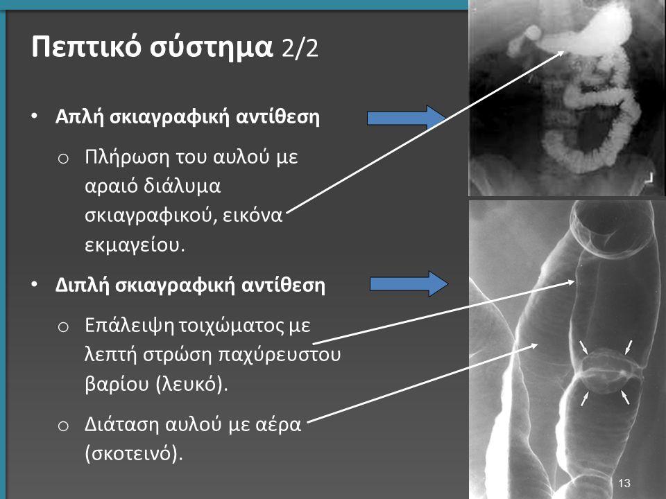 Πεπτικό σύστημα 2/2 Απλή σκιαγραφική αντίθεση o Πλήρωση του αυλού με αραιό διάλυμα σκιαγραφικού, εικόνα εκμαγείου.