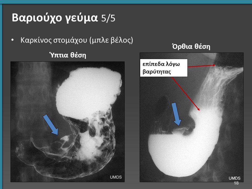Βαριούχο γεύμα 5/5 Καρκίνος στομάχου (μπλε βέλος) επίπεδα λόγω βαρύτητας 18 Ύπτια θέση Όρθια θέση