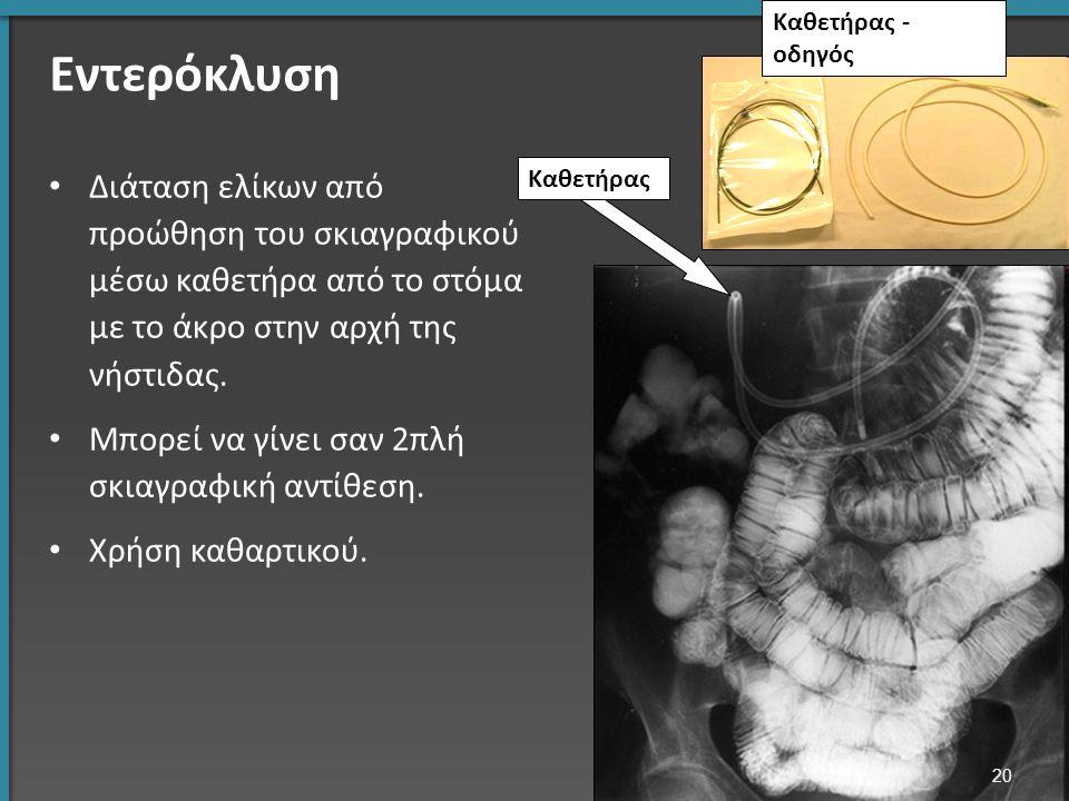 Εντερόκλυση Διάταση ελίκων από προώθηση του σκιαγραφικού μέσω καθετήρα από το στόμα με το άκρο στην αρχή της νήστιδας.