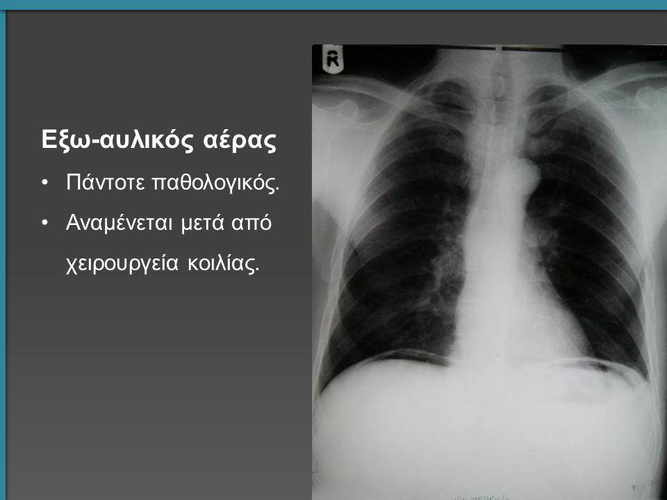 Εξω-αυλικός αέρας Πάντοτε παθολογικός. Αναμένεται μετά από χειρουργεία κοιλίας.