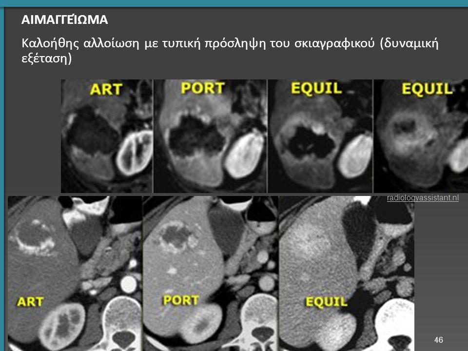 46 ΑΙΜΑΓΓΕΊΩΜΑ Καλοήθης αλλοίωση με τυπική πρόσληψη του σκιαγραφικού (δυναμική εξέταση) radiologyassistant.nl