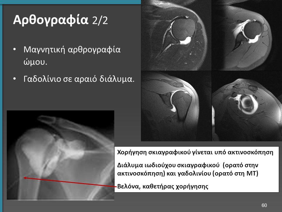 Αρθογραφία 2/2 Μαγνητική αρθρογραφία ώμου. Γαδολίνιο σε αραιό διάλυμα.