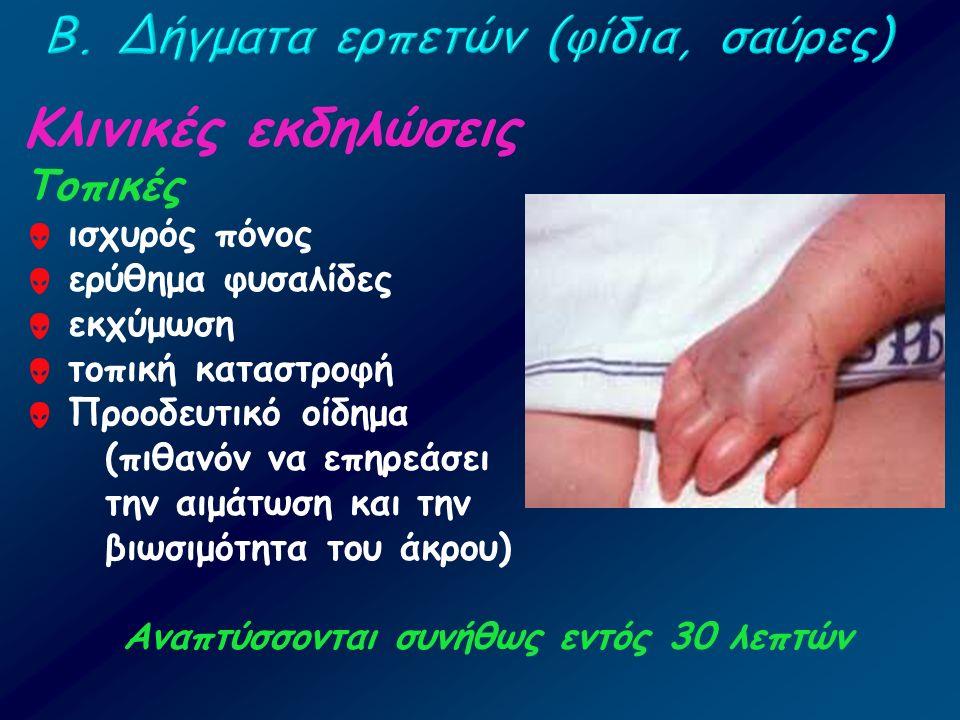 Κλινικές εκδηλώσεις Τοπικές  ισχυρός πόνος  ερύθημα φυσαλίδες  εκχύμωση  τοπική καταστροφή  Προοδευτικό οίδημα (πιθανόν να επηρεάσει την αιμάτωση